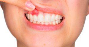 periodoncia-cph