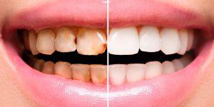 rehabilitacion-oral-2